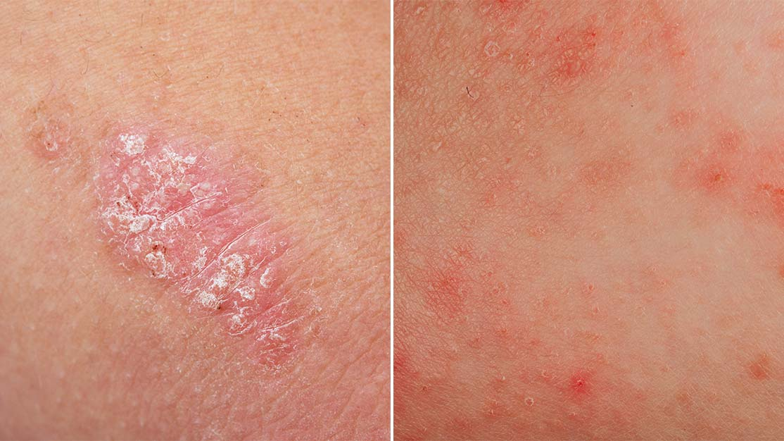 Difference Between Eczema And Psoriasis Health Answers Walgreens