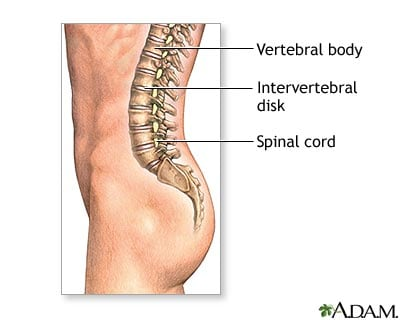 The discs act as cushions between vertebrae and absorb energy while the