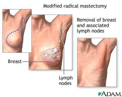 Surgery for accessory breast tissue