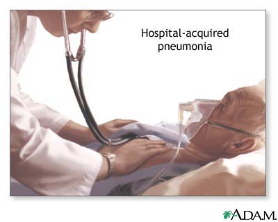 Hospital-acquired pneumonia