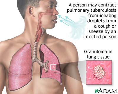 Tuberculosis of the lungs