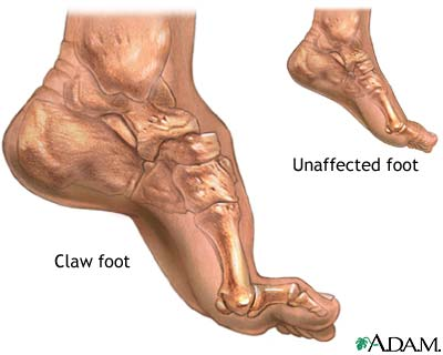 Foot Arch Cramps