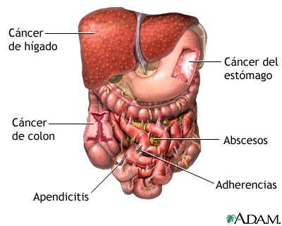 Enfermedades Aparato Digestivo on appendicitis location diagram